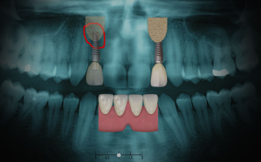 teeth xray photo 3