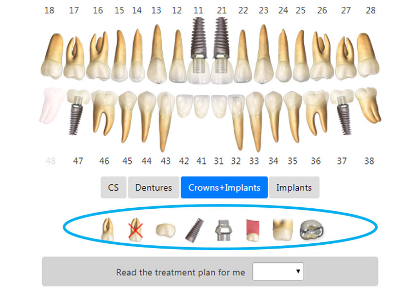 3D models of crowns and implants 1